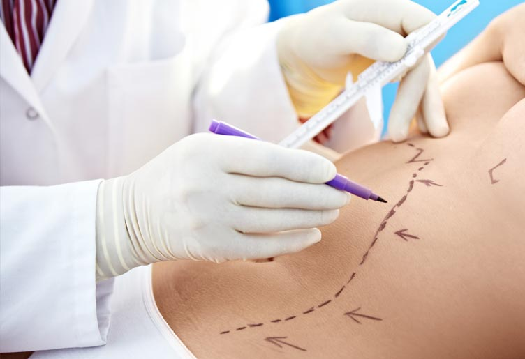 Plastic surgery Liposuction & Anti-Aging